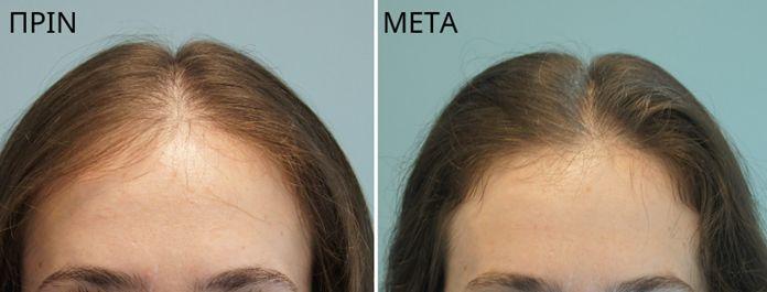 Εποχική τριχόπτωση Γιατί τα μαλλιά πέφτουν το φθινόπωρο